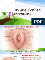 suturing perineal lacerations.pptx