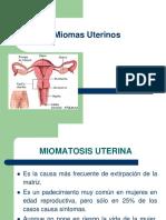 Miomas Uterinos Ok-1