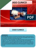 Caso Clinico Tvp y Tumores de Partes Blandas