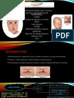 DIAPOSITIVAS_LABIO LEPORINO_QUEZADA GAVINO ANDERSON.pdf