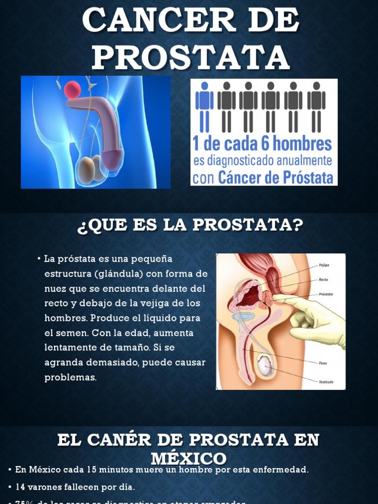 ¿Qué puede causar un absceso en la próstata?