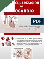 revascularizacion de miocardio