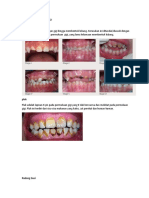 Bahaya Tidak Merawat Gigi