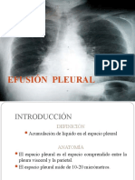 EFUSIÓN  PLEURAL_final