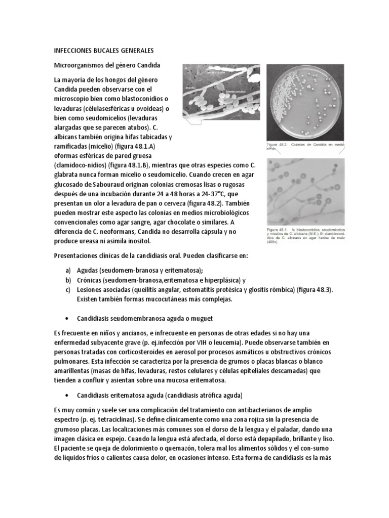 Candidiasis pseudomembranosa aguda (muguet)