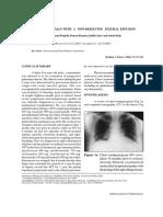 Nonresolving PF Sarcoidosis