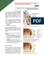 Endoscopic Dacryocystorhinostomy _DCR_ Surgical Technique