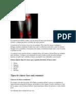 Tumores de Rodilla y Cadera