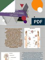 Sistema Neuroendocrino Difuso