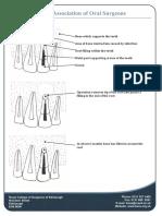 Apicectomy-diagrams1