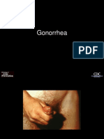 gonorrhea.ppt