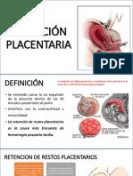 Retención placentaria