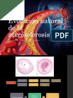 Ateriosclerosis.pptx