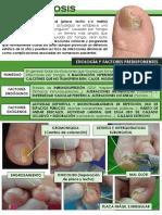 ONICOMICOSIS (TINEA UNGUIUM).pdf