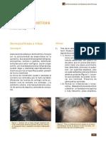 TIÑAS.pdf