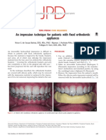 An Impression Technique for Patients With Fixed Orthodontic Appliances