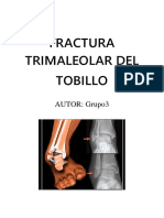 Fractura Trimaleolar Del Tobillo