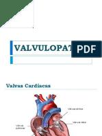 Valvulopatia (1)