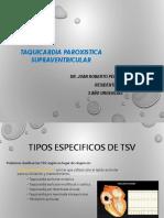 taquicardiaparoxisticasuprab-140415232315-phpapp02