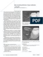 The All Acrylic Resin Mandibular Removable Partial Denture Design Considerations