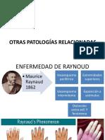Otras Patologías Relacionadas