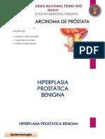 Seminario Hbp y Cancer de Prostata 2