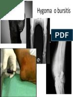 Hygroma o Bursitis (1)