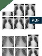 Gambar radiologi