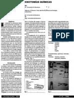 Tratamiento Quirurgico de La Onicocriptosis(1)