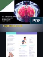 TUBERCULOSIS.pptx