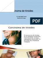 Carcinoma de tiroides.pptx