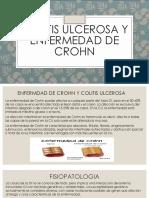 Colitis Ulcerosa y Enfermedad de Crohn