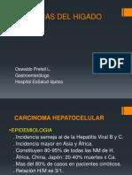 Neoplasia Hígado