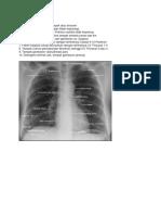 Radiograf.docx