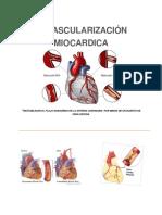 Revascularizacion miocardica 2