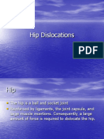 Hip Dislocation Presentation
