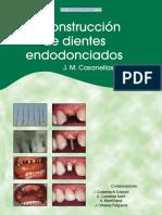 Reconstrucción de Dientes Endodonciados - J. M. Casanellas Bassols