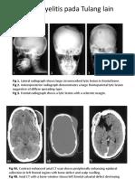 Gambaran Radiologi Osteomielitis
