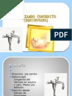 Pie Zambo Congenito Equinovaro
