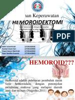 HEMOROIDEKTOMI