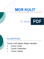 13.Tumor Kulit 2
