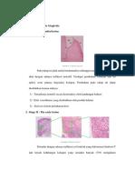 Patogenesis Gingivitis