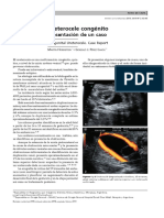 ureteroccelle.pdf