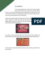 Hiperplasia Karena Leukimia