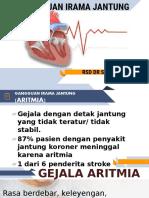 ARITMIA FIX.pptx