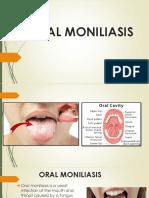 Oral Moniliasis