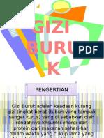 121472697-Ppt-Gizi-Buruk.pptx