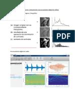Informe3 Laboratorio Procesamiento Digital de Señales