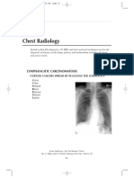 chest rads
