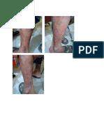 Dermatitis Seboroik.docx